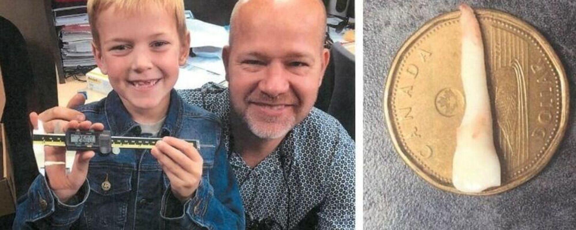 Αγοράκι από τον Καναδά έχει το παγκόσμιο ρεκόρ για το μεγαλύτερο παιδικό δόντι - Sputnik Ελλάδα, 1920, 03.04.2021
