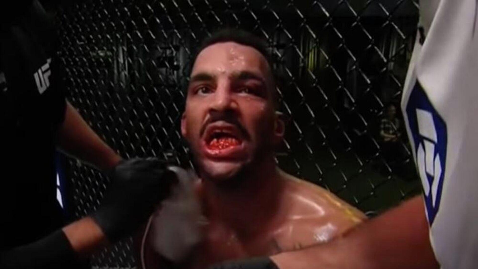 Ο τραυματισμός του Ντέβιν Κλαρκ στο UFC - Sputnik Ελλάδα, 1920, 20.09.2021