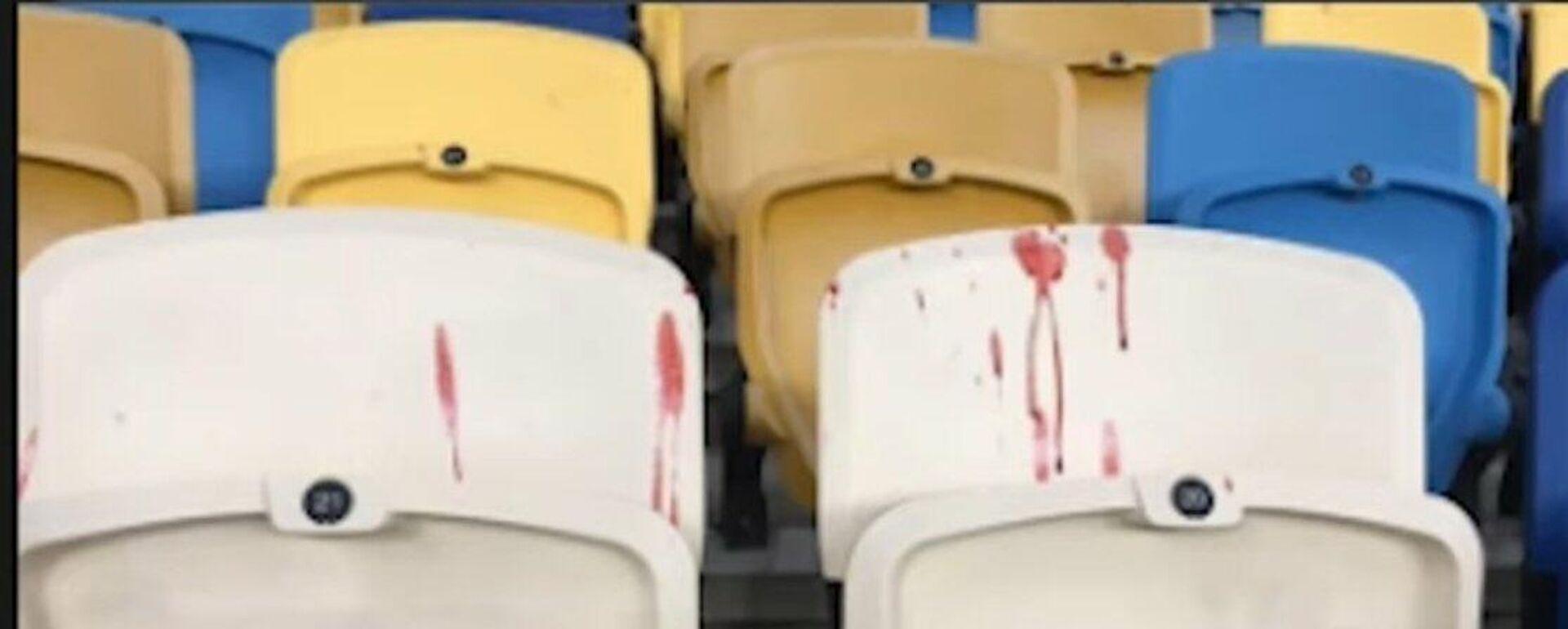 Καθίσματα με αίμα στην Ουκρανία - Sputnik Ελλάδα, 1920, 21.09.2021