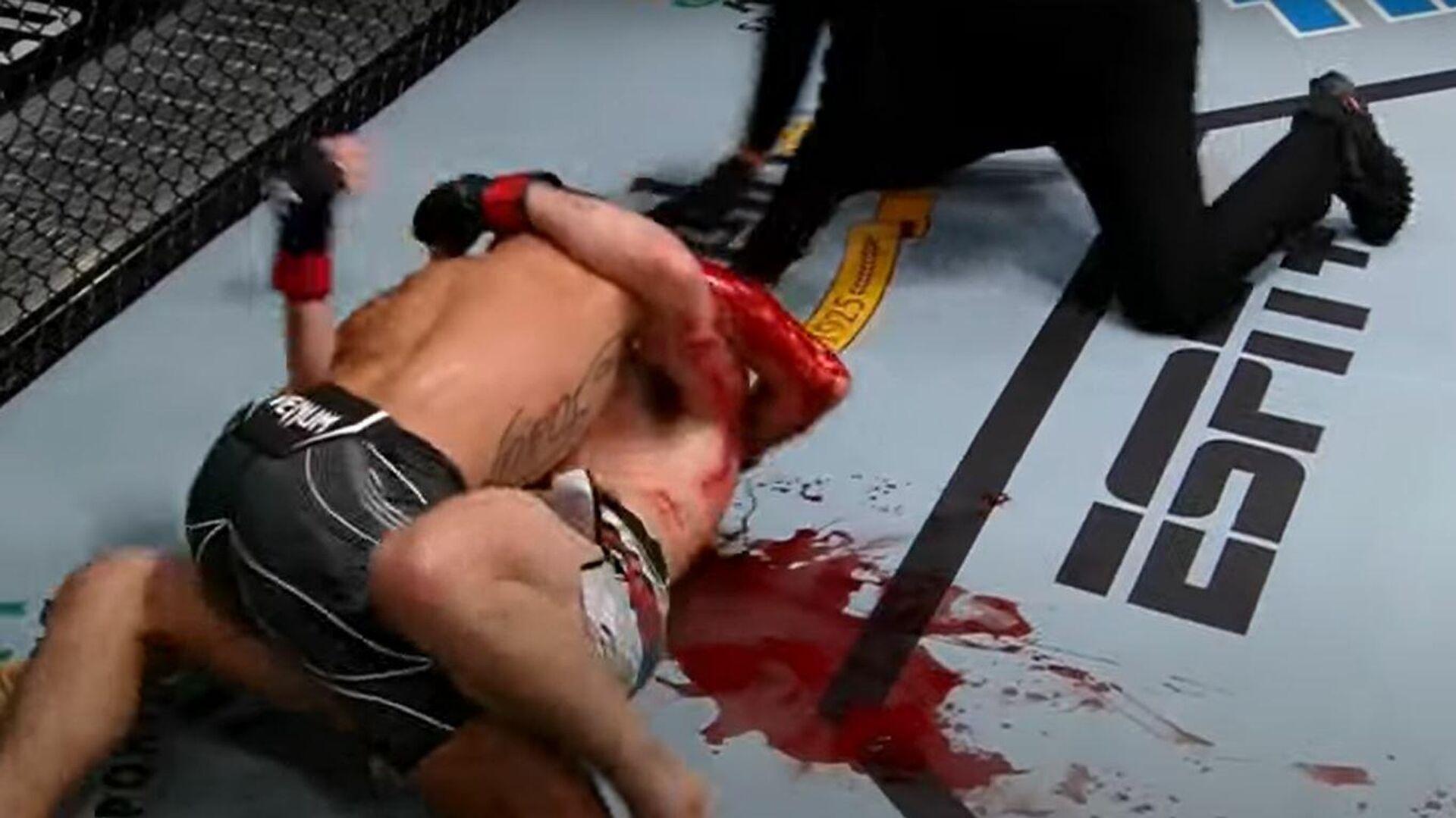 Αίματα στο ρινγκ σε αγώνα UFC - Sputnik Ελλάδα, 1920, 11.10.2021