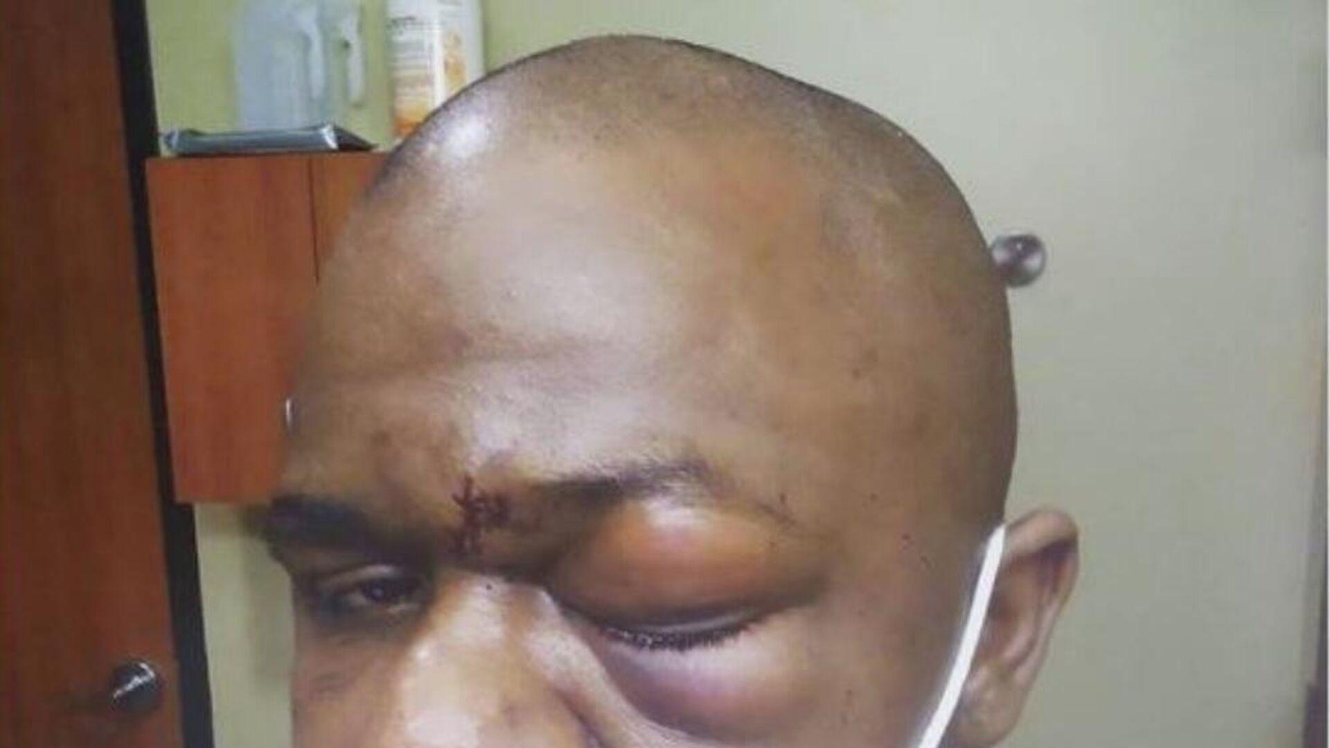 Σοβαρός τραυματισμός πυγμάχου στο μάτι - Sputnik Ελλάδα, 1920, 11.10.2021
