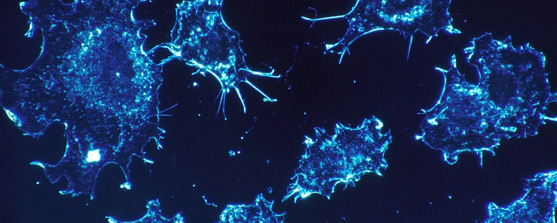 Καρκινικά κύτταρα - Sputnik Ελλάδα, 1920, 13.10.2021